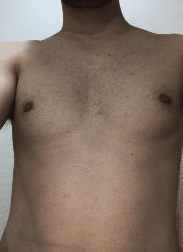 ゼロファクター使用前の胸毛