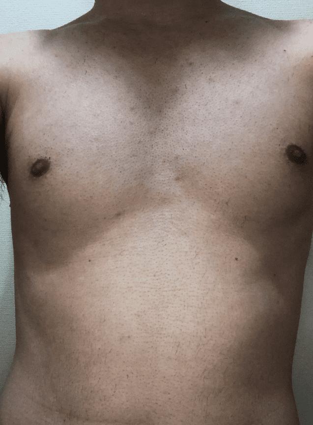 ゼロファクター使用後の胸毛