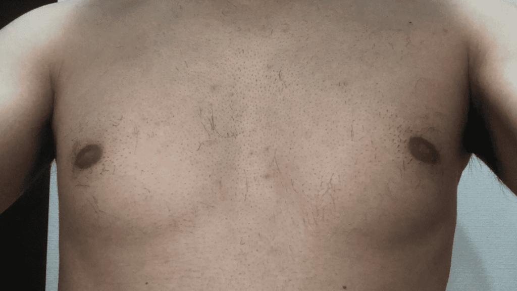 ゼロファクターを使用後の胸毛