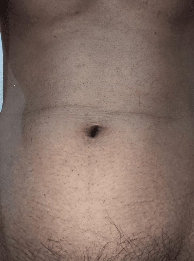 ゼロファクター使用後の腹毛