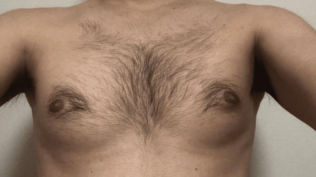 ゼロファクターを使用する前の胸毛