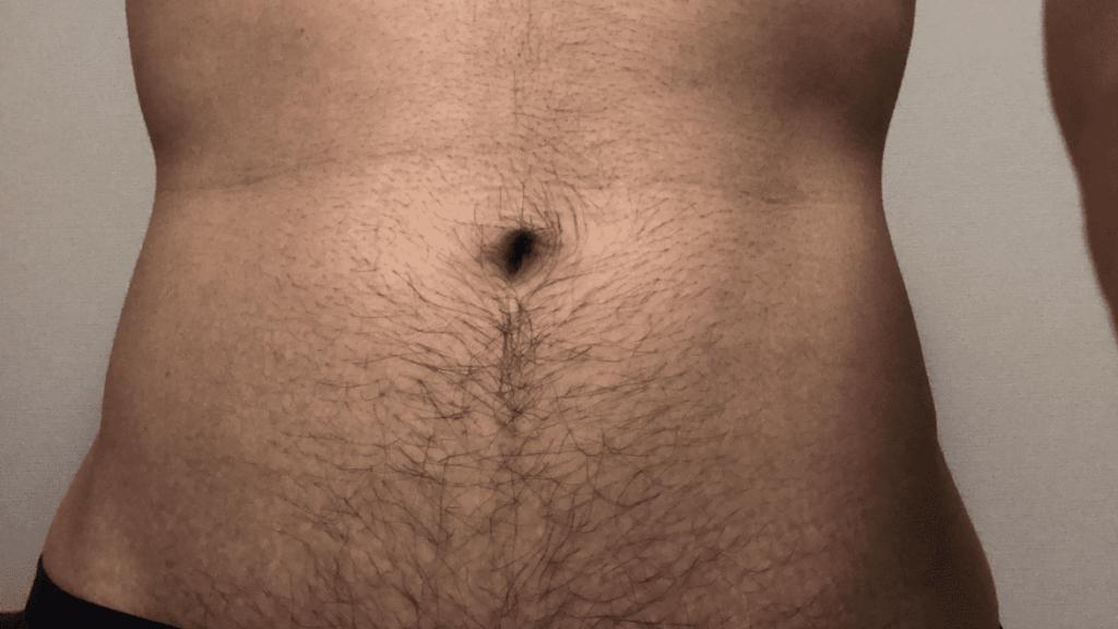 ゼロファクターを使用する前の腹毛